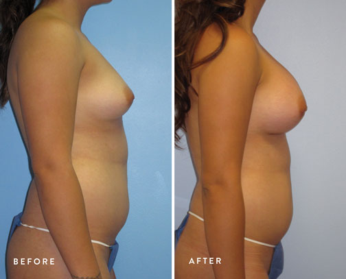 HSUSURGERY_breast-augmentation-before-after-7.jpg