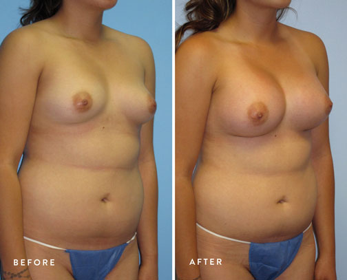 HSUSURGERY_breast-augmentation-before-after-8.jpg