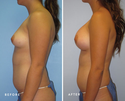 HSUSURGERY_breast-augmentation-before-after-9.jpg