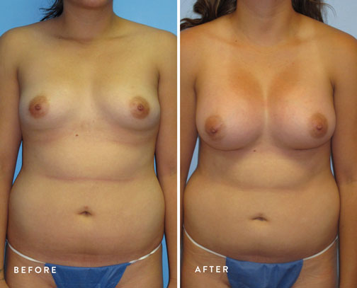 HSUSURGERY_breast-augmentation-before-after-6.jpg