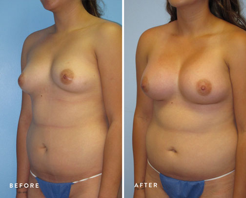HSUSURGERY_breast-augmentation-before-after-10.jpg