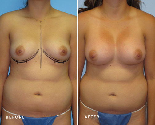 HSUSURGERY_breast-augmentation-before-after-11.jpg