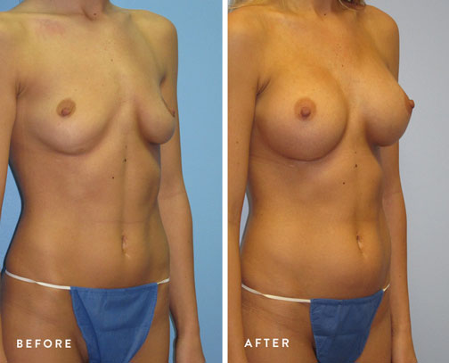 HSUSURGERY_breast-augmentation-before-after-13.jpg