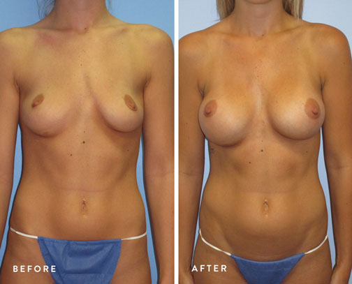 HSUSURGERY_breast-augmentation-before-after-12.jpg