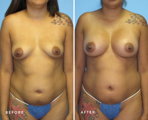 HSUSURGERY_breast-augmentation-before-after-20.jpg