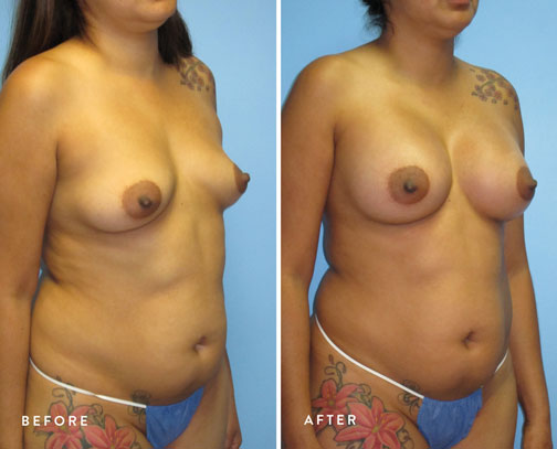 HSUSURGERY_breast-augmentation-before-after-21.jpg