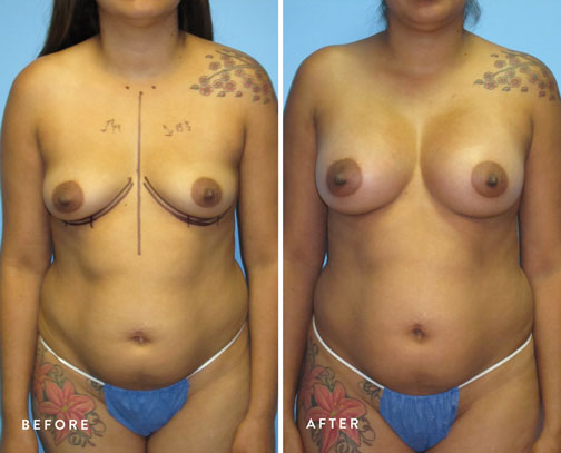 HSUSURGERY_breast-augmentation-before-after-22.jpg