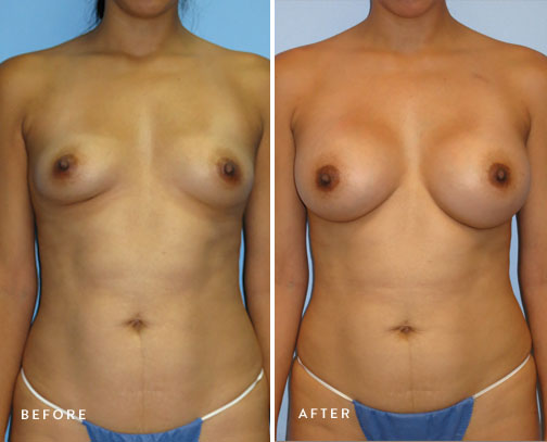 HSUSURGERY_breast-augmentation-before-after-14.jpg