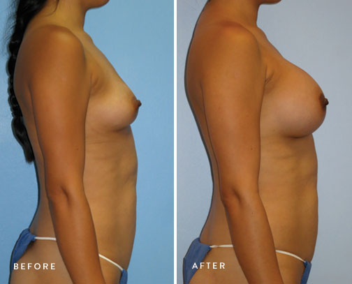 HSUSURGERY_breast-augmentation-before-after-15.jpg
