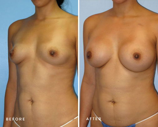 HSUSURGERY_breast-augmentation-before-after-16.jpg