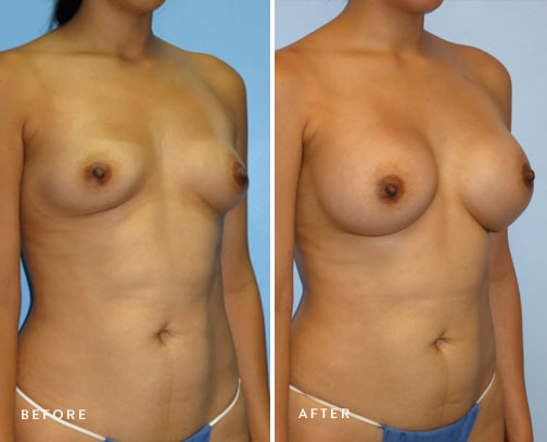 HSUSURGERY_breast-augmentation-before-after-17.jpg