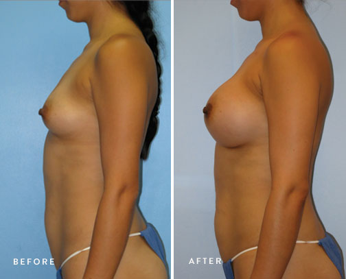 HSUSURGERY_breast-augmentation-before-after-18.jpg