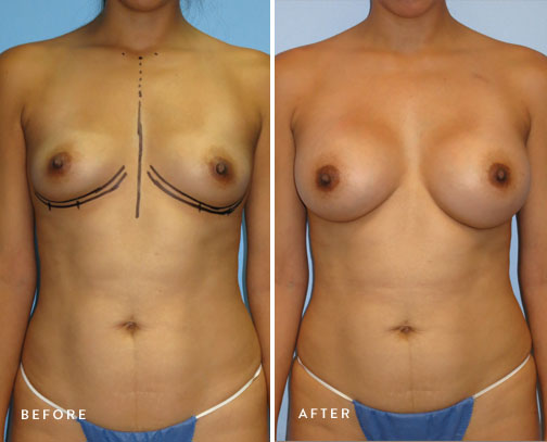 HSUSURGERY_breast-augmentation-before-after-19.jpg