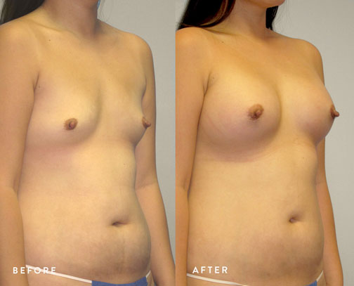 HSUSURGERY_breast-augmentation-before-after-42.jpg
