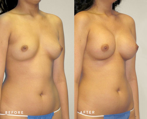 HSUSURGERY_breast-augmentation-before-after-44.jpg
