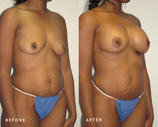 HSUSURGERY_breast-augmentation-before-after-45.jpg