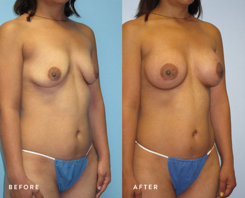 HSUSURGERY_breast-augmentation-before-after-41.jpg