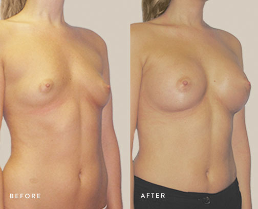 HSUSURGERY_breast-augmentation-before-after-39.jpg