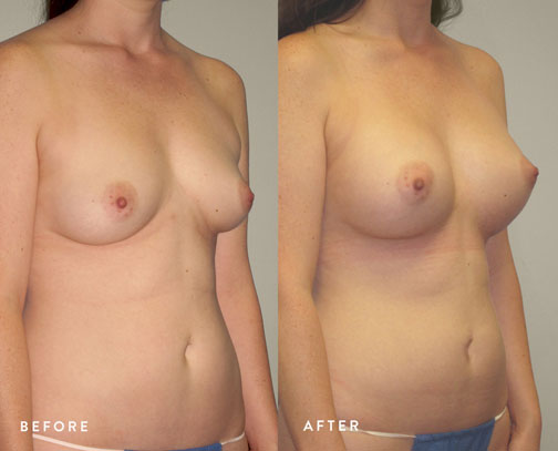 HSUSURGERY_breast-augmentation-before-after-40.jpg