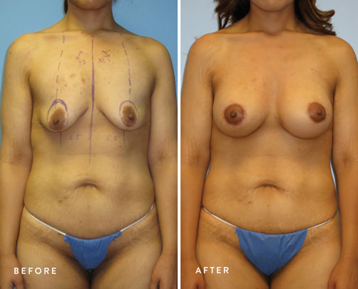 HSUSURGERY_breast-lift-before-after-10.jpg