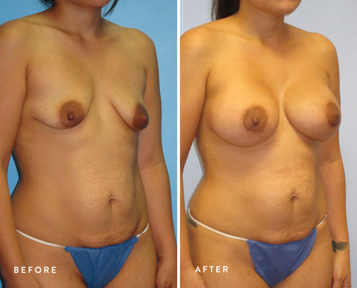 HSUSURGERY_breast-lift-before-after-13.jpg