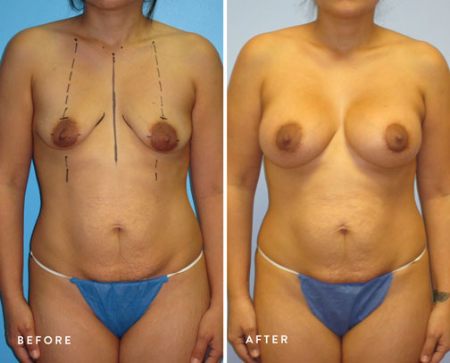 HSUSURGERY_breast-lift-before-after-16.jpg