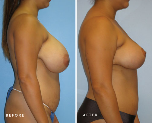 HSUSURGERY_breast-reduction-before-after-1.jpg