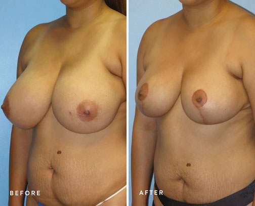 HSUSURGERY_breast-reduction-before-after-3.jpg