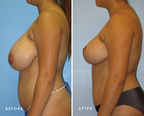 HSUSURGERY_breast-reduction-before-after-4.jpg