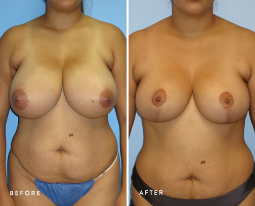 HSUSURGERY_breast-reduction-before-after-5.jpg