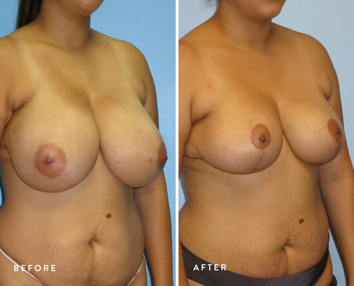 HSUSURGERY_breast-reduction-before-after-2.jpg