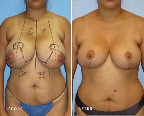 HSUSURGERY_breast-reduction-before-after-6.jpg