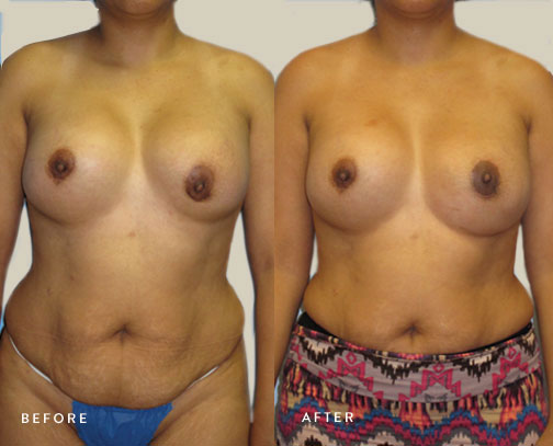 HSUSURGERY_breast-revision-before-after-1.jpg