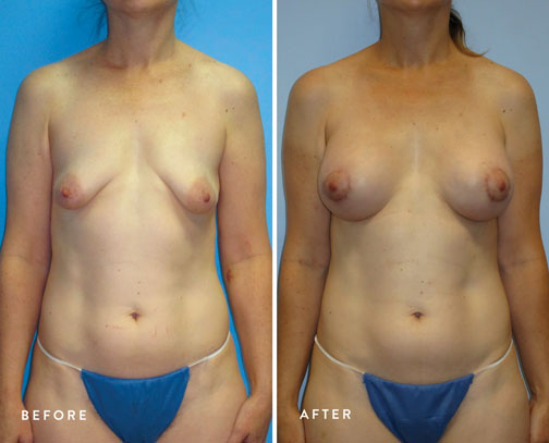 HSUSURGERY_tuberous-breast-surgery-before-after-1.jpg