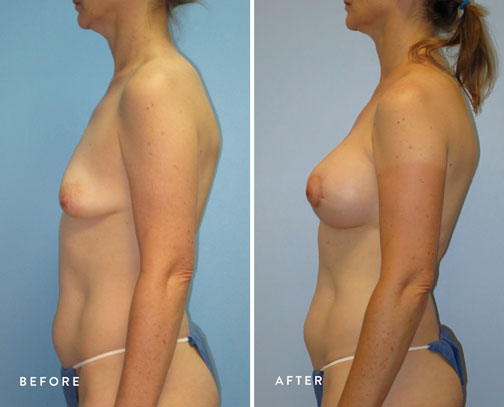 HSUSURGERY_tuberous-breast-surgery-before-after-2.jpg