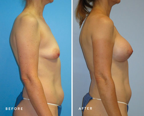 HSUSURGERY_tuberous-breast-surgery-before-after-3.jpg