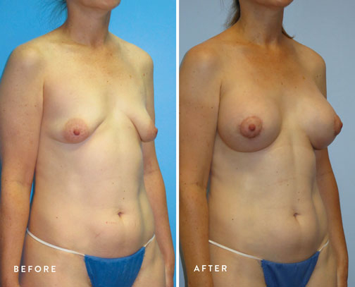 HSUSURGERY_tuberous-breast-surgery-before-after-4.jpg