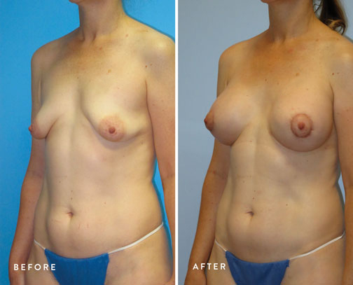 HSUSURGERY_tuberous-breast-surgery-before-after-5.jpg