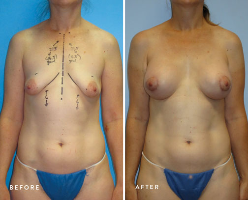 HSUSURGERY_tuberous-breast-surgery-before-after-6.jpg