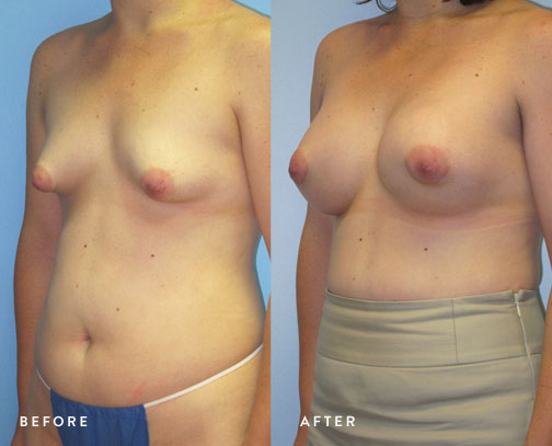 HSUSURGERY_tuberous-breast-surgery-before-after-7.jpg
