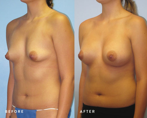 HSUSURGERY_tuberous-breast-surgery-before-after-8.jpg