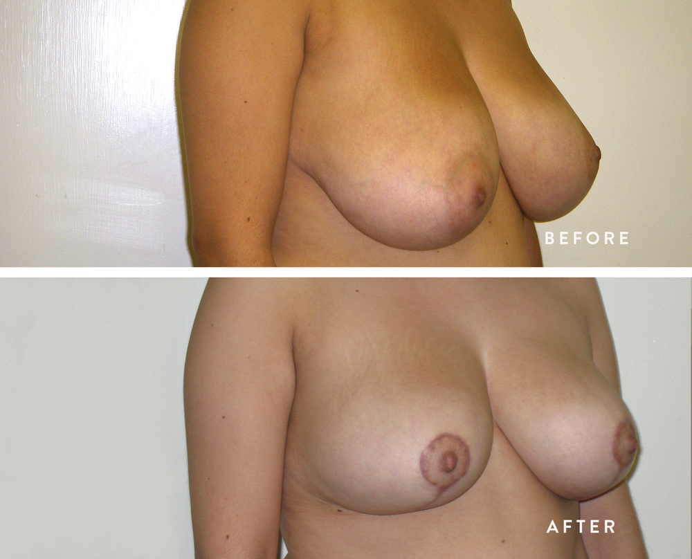 HSUSURGERY-breast-reduction-before-after.jpg