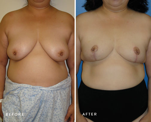 HSUSURGERY_breast-reduction-before-after-7.jpg