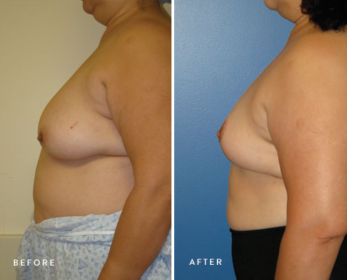 HSUSURGERY_breast-reduction-before-after-9.jpg