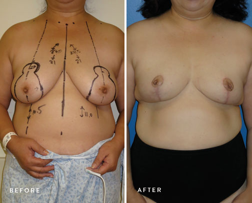 HSUSURGERY_breast-reduction-before-after-8.jpg