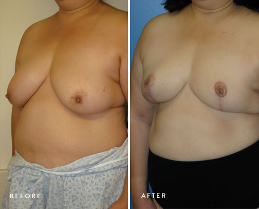 HSUSURGERY_breast-reduction-before-after-10.jpg