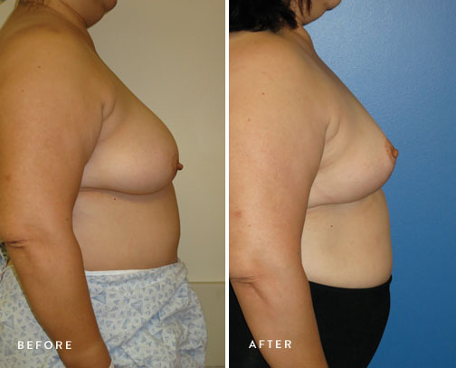 HSUSURGERY_breast-reduction-before-after-11.jpg