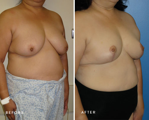 HSUSURGERY_breast-reduction-before-after-12.jpg