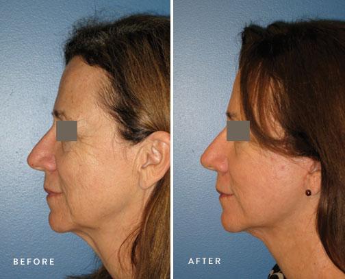 HSUSURGERY_facelift-neck-lift-before-after-1.jpg
