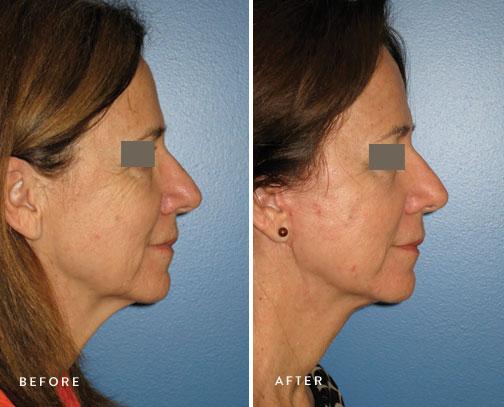 HSUSURGERY_facelift-neck-lift-before-after-3.jpg